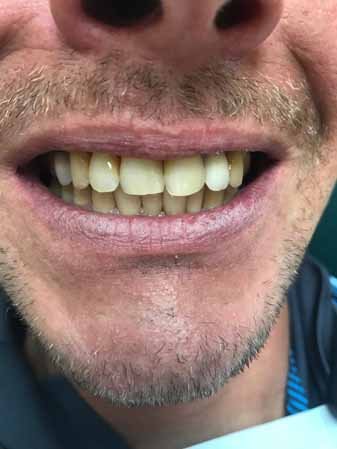 Cosmetic tooth procedure